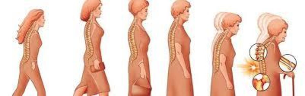 Medicina naturistă: Tratamente pentru osteoporoză