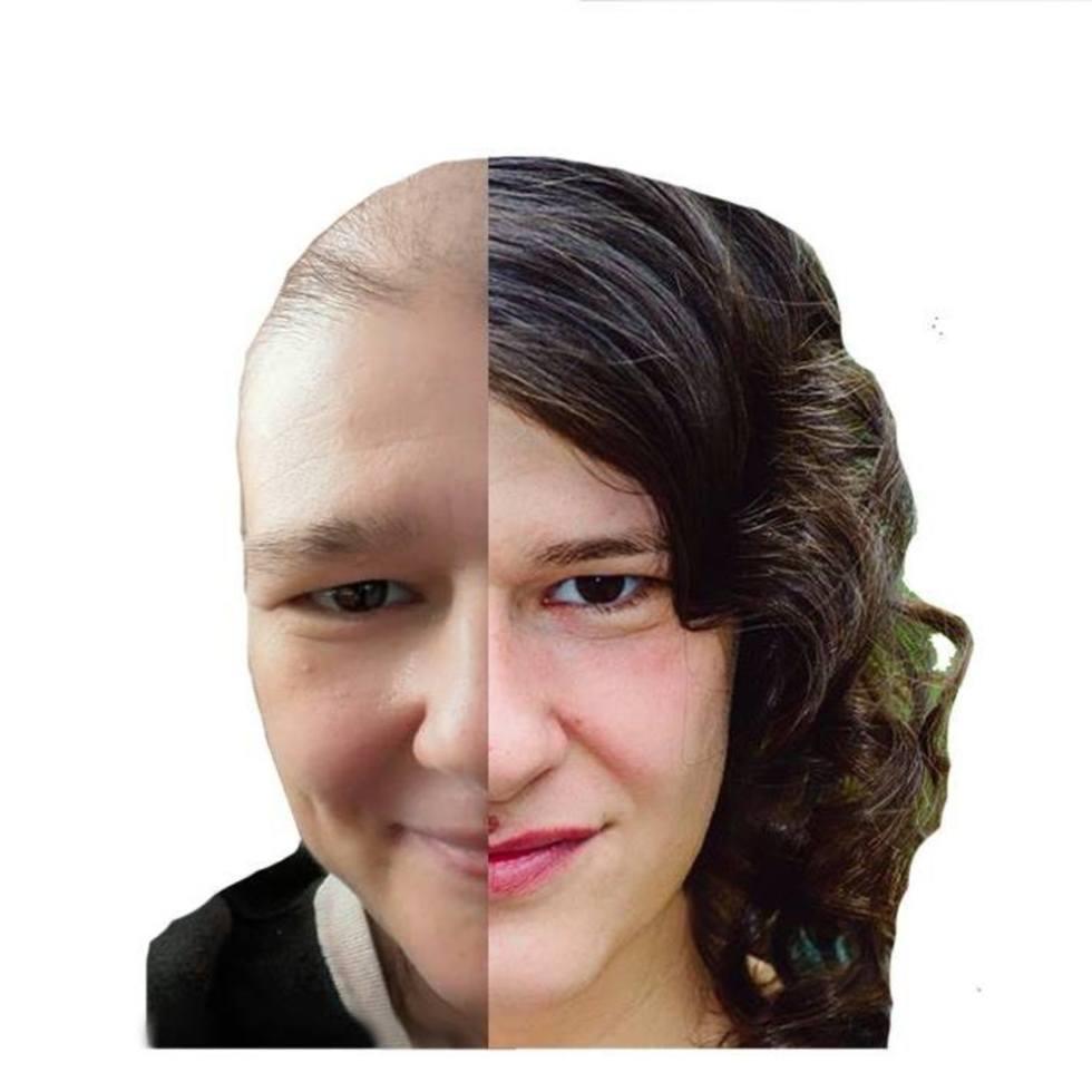 Iulia are 34 de ani și vrea să învingă cancerul. Fii aliatul ei!